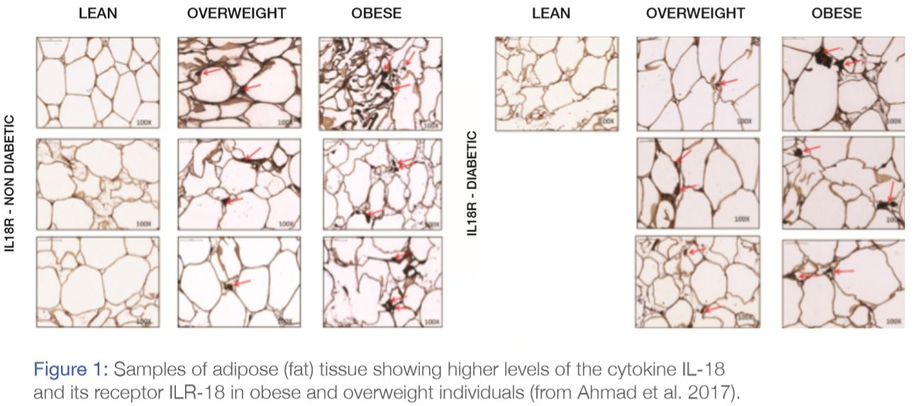 Fat Tissue And Metabolic Inflammation